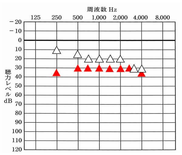 補聴器で改善できる数値より同じ、もしくは、それより上の場合は、残念ながら補聴器の効果は薄くなる。