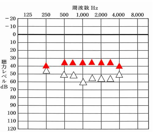 ▲が補聴器での改善目標値。△が補聴器なしの状態の数値。こちらは、音場閾値測定というものでの数値。
