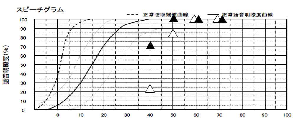 補聴器には、補聴器を装用した状態で、どのくらい音声が理解できるのか。という測定も行える。その結果は、こちらの通り、▲が補聴器あり、△が補聴器なし。補聴器なしでもそれなりに良い状態だった為、補聴器を装用し、さらに聞きやすくなるようにした。概ね、良い状態になる。