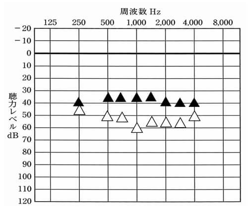初回時の耳かけ形の数値。非常に良い数値で、かつ騒がしい事はないとのこと。