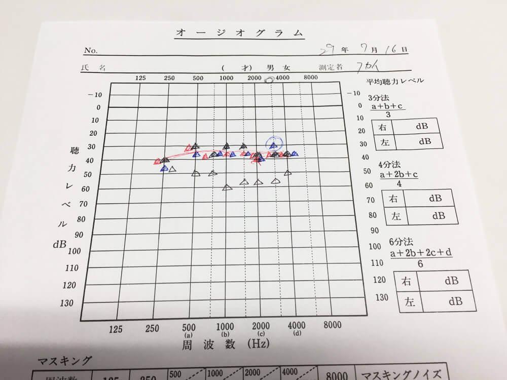 補聴器の効果を客観的に確認するツールの一つ。このように視覚化し、かつ見方から見るべき部分に関しても、説明しています。