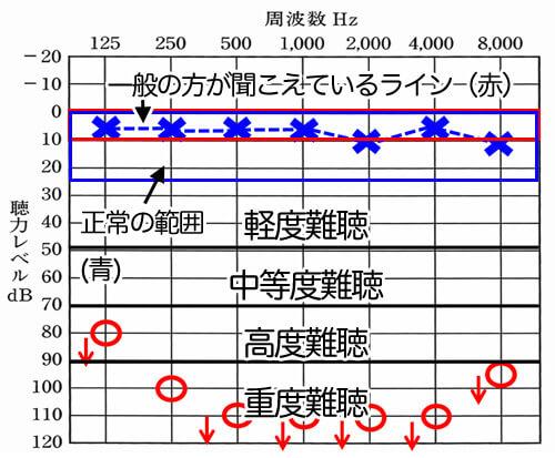 聴力図の数値の意味。おおよその見方がわかると、どのような状態なのかがわかるようになる。