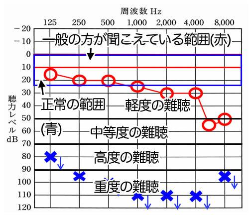 0〜10dBが一般の人が聞こえている数値、0〜24dBが正常の範囲内。25〜49dBが軽度、50〜69dBが中等度の難聴、70〜89dBが高度、90dBより下が重度となる