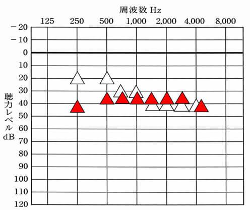 赤い△が補聴器を装用して改善できる数値。その数値より上は、なかなか改善がしづらい。