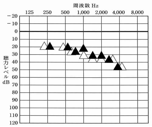 △が補聴器なしの状態。▲が補聴器ありの状態。ほとんど同じか、補聴器なしより少し良いか程度。