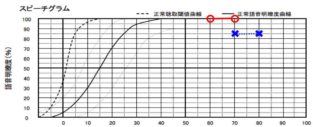 こちらは、補聴器の効果を見るための測定、語音明瞭度測定の数値。音をいれても音声の理解に繋がらない場合があるため、このような測定がある。