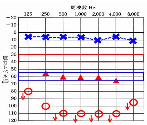 聴力が重い場合は、良いケースで青で囲んだところまで、改善できる可能性がある。しかし、それでも通常の音声を聞くのに必要な数値までは、届かない。かつ、青で囲んだ部分は、良いケースになり、実際には、2000Hzあたりから、ここまで目指すのが困難になる。
