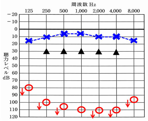 人工内耳の改善例。重度難聴の方がここまで改善できるのは驚きだが、数値上で比較するとクロスには、及ばない。この部分がどう影響を与えるか。