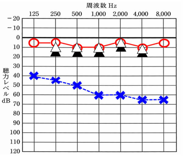 クロス補聴器の場合は、だいたいこのくらいは改善する、聞こえる耳側につけているため、数値としては、このように改善度が高くなりやすいところに注意。