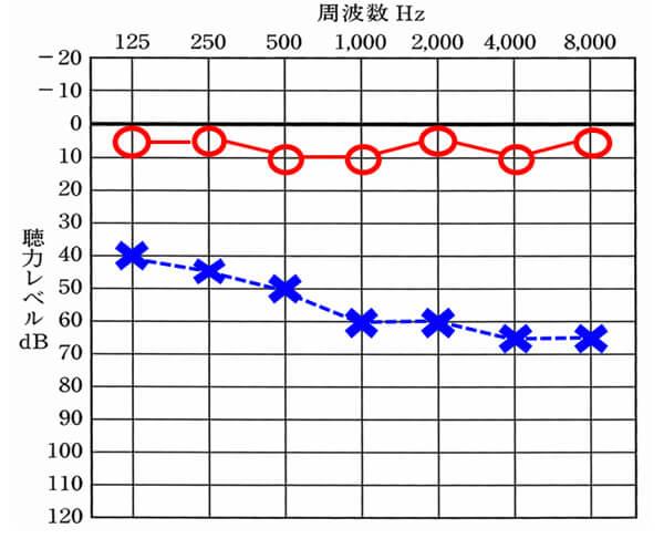 今回の例。こちらを例に出したのは、人工内耳の改善数値とこのような難聴の方の補聴器での改善数値が似ているため。