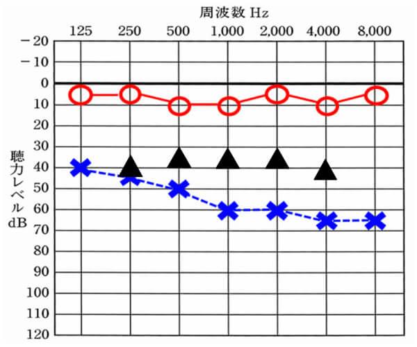 まず補聴器を装用した時の聞こえの効果としては、だいたいこのようになる。良いケースは、35dBのところが30dBまで改善することもある。