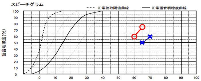 縦は、正解率を表し、横は、音の大きさを表す。数値が上にいくといくほど、音を入れることにより、音声の聴きやすさに貢献できる事を意味する。
