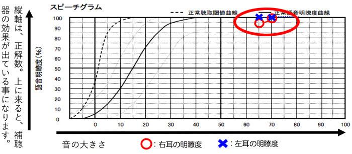 測定結果を見てみると、右も左も、ほぼ100%で、効果が出やすい耳であることがわかりました。