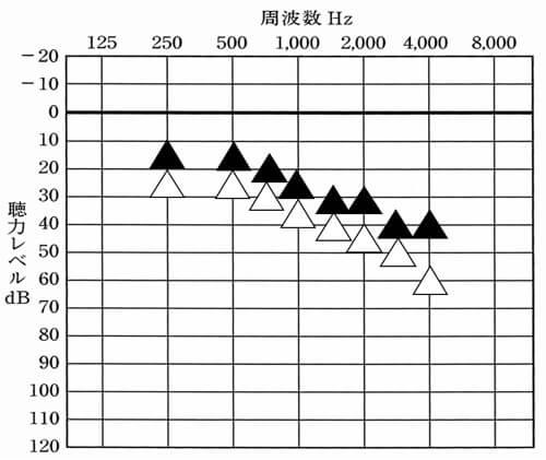 CIC補聴器を製作して、測定した結果がこちら。初めに装用した状態のものより一部はよくなり、一部は低下。ただよくなっている部分も低下している部分もひとメモリ分しかないため、そこまで大きく変化はしていない。