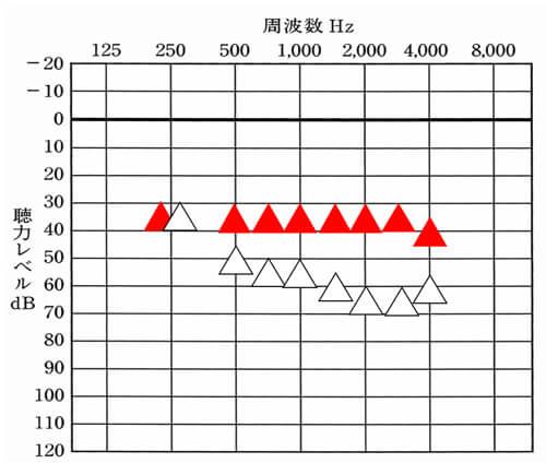 補聴器には、補聴器を装用した状態で、どのくらい改善できていると良いかのおおよその改善目標がある。