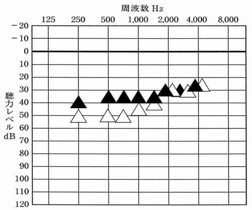 上記の聴力の場合における改善目標。低いところを補いつつ、高い音は、補聴器なしより、低くならないようにするのがポイント。これが難しい。