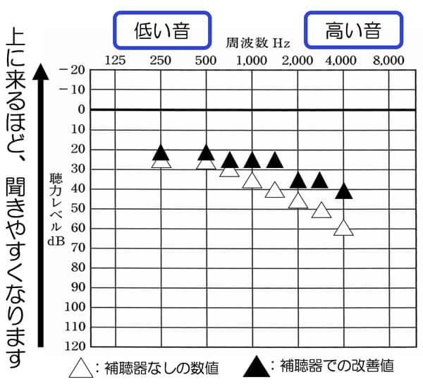 はじめに試聴してみて、測定したデータがこちら。聞こえの改善値は、非常によく、かつ、騒がしい感覚も感じない。補聴器は、使える範囲内の大きさ。との事。