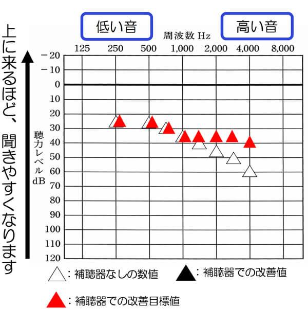 おおよそ、補えると良い数値は、こちらの通りです。250〜1000Hzあたりは、聞こえも良いので、補聴器をつけることで下がらないようにし、それよりも高い音に関しては、補って、聞きにくさを改善していきます。なお、このくらいの聞こえの方ですと、35dBではなく、30dBくらいまで改善できる方も多々います。(1000Hz〜3000Hzが)