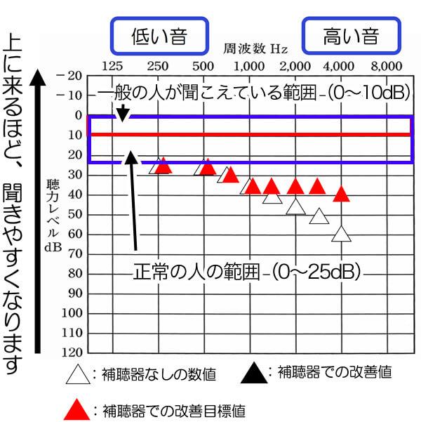 今現在、補聴器で改善できる数値は、35dBから、30dBくらいです。そのため、正常の範囲には、少し及ばないものの、それなりに改善させることはできるようになってきています。