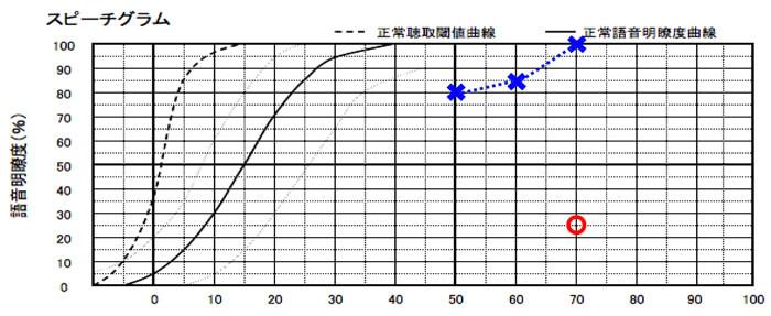 補聴器の世界には、音声をどれだけ理解できるかを調べる測定がある。それを行ってみると、左側は良いようだが、右は低い。判断の数値は、50%あるかないかになる。