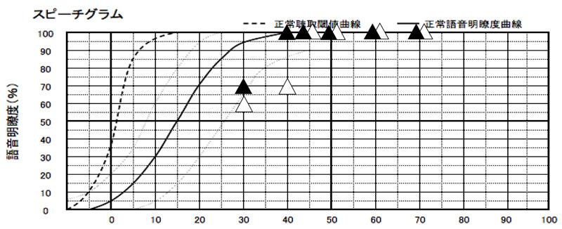 だいたいではあるが、70dB、大きい声の方、60dB普通くらいの声の方、50dBちょっと声が小さい方、40dB声が小さい方。で測定。30dBは、調子に乗って調べた部分になる。