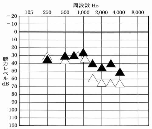 補聴器には、補聴器を使用した状態で、どのくらい聞こえているのかを調べる測定がある。それを使うことで、どのような聞こえなのか。どのくらい効果が出ているのかを判断することができる。