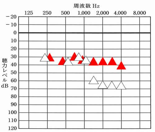 補聴器の場合、ある程度、どこまで改善すれば良いのかの数値がある。それと比較することで、現状を把握することができる。
