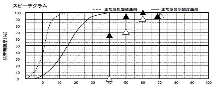 言葉の聞こえの正解率に関しても概ね良い状態。70dB(大きい声の方の正解率)、60dB(普通の声の大きさの方の正解率)、50dB(少し声が小さい方の正解率)が、90〜100%まで来ることができ、聞こえは、よくなっているようだ。