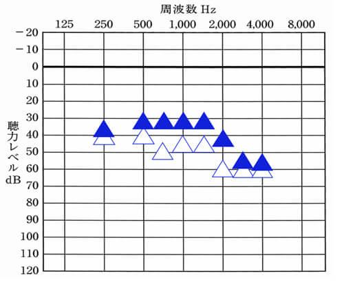 聞こえている数値は、250〜1500Hzは、いい状態。もしできるのであれば、2000〜3000Hzは、35dBくらいまで改善させ、4000Hzは、40dBくらいまでは改善させたいところ。