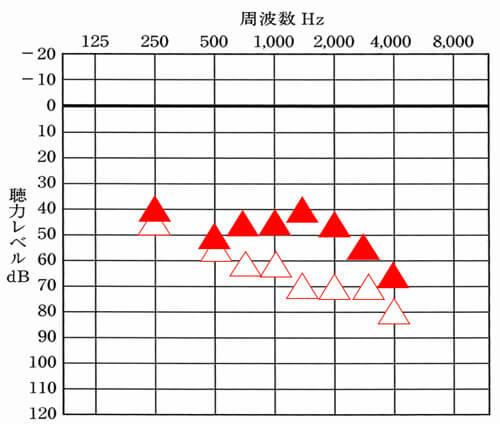 改善数値としては、低い、全体的に35dBくらい目指せても良い状態だが、それよりも低い状態だった。(250Hz、4000Hzは、40dB。そのほかは、35dBほど目指せると良い)