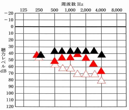見辛いが、▲が目標値。赤い▲が補聴器で聞こえている数値の現状。補聴器は、どこまで聞こえを改善させられるのかの目標値を定めると、現状を理解しやすくなる。