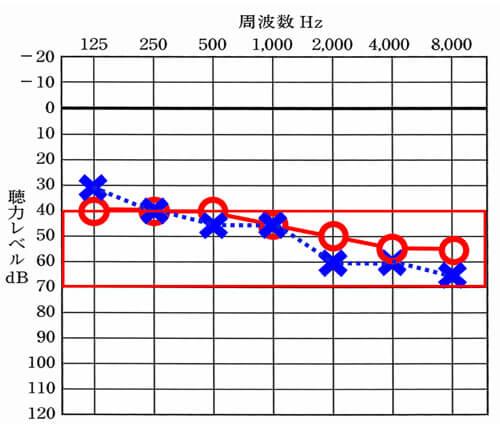 片耳難聴の場合における補聴器の判断は、約70dBより軽いこと。それ以上、重くなると、クロス補聴器の方が改善がよくなる傾向がある。
