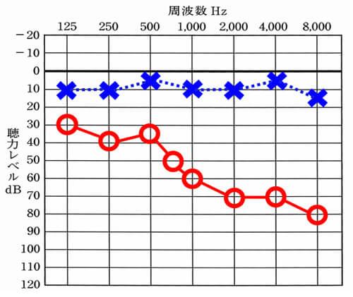 意外に見るパターン。明瞭度が低い場合は、高域が大きく低下しているケースをよく見る。
