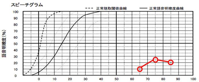 明瞭度が低い場合は、クロス補聴器で補うのが良い。ただ、50%、60%くらいの場合、クロス補聴器か、一般の補聴器か、どちらが良いか、簡単でも良いので、試して見るとより判断はしやすくなる。