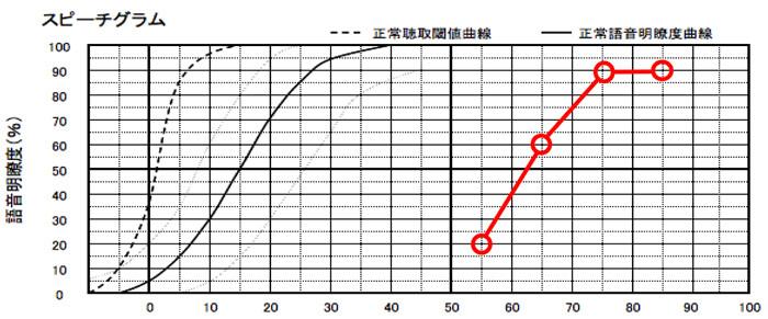 明瞭度が良い場合は、そのまま補聴器を装用して聞こえを補う方が良いケースが多い。ただ、明瞭度が60%、70%くらいだと、クロスの方が改善できるというケースもあった。実際には、二つとも試してみて効果を見るのが良い方法にはなる。