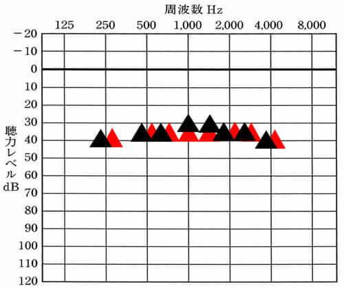 補聴器には、主に改善させる目標値が存在する。その目標値と補聴器をつけて聞こえている数値がこちら。見方は、オージオグラムと同じで、それぞれの周波数がどのくらい聞こえているのかを表し、上にあるとあるほど、聞こえやすい状態になる。