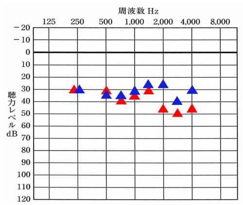 はじめに調整して見た感覚では、250Hz〜1500Hzくらいまでなら、バランスよく整えられそうだ。ということ。残念ながら2000Hz以降は、バランスよくは、できなかったが、改善は、できそうだ。