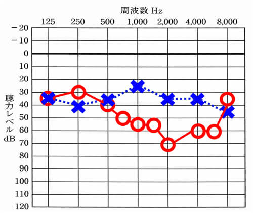 中音域から高域にかけて、左右差が大きくなるケース。意外にこのようなケースは、ある。