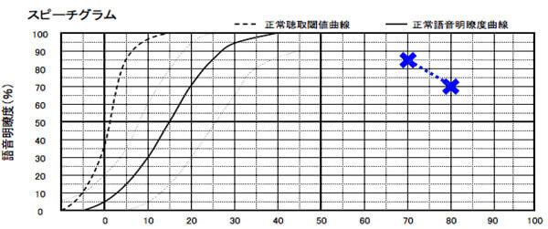 最良値が、50%以上ある場合(できれば70%くらい)は、補聴器を装用して、改善した方が良い傾向がある。