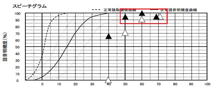 音場閾値測定と同じく、△の部分は、補聴器なしの状態。そして、▲が補聴器あり。補聴器なしの最良値を基準として、50dB、60dB、70dBが−10%以内なら、良しとしている。