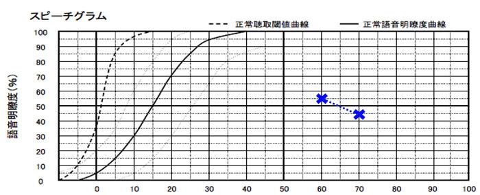 耳には、音声を大きく聞かせ、どのくらい理解できるのか。を調べる測定がある。それを行なった結果、それほど、良い状況ではなかった。