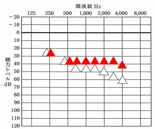 m-hさんの場合における改善できると良い数値は、赤で表記。実際には、30〜35dBくらいの間で改善できると良い状況。