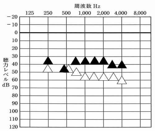 なぜか500Hzのところは、反応せず、それ以外は、概ね、目標値まで来ることができた。しかし、静かなところであれば、大丈夫だが、音が多い環境だと少し音が大きく、きつく感じるとのことだった。