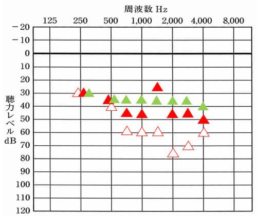 調べるものが多いと色合いが大変だが、こちらは、緑のマークが改善目標値。補聴器は、現状の聞こえと改善目標の数値を比較すると、一気に状況を理解することができる。覚えておこう。