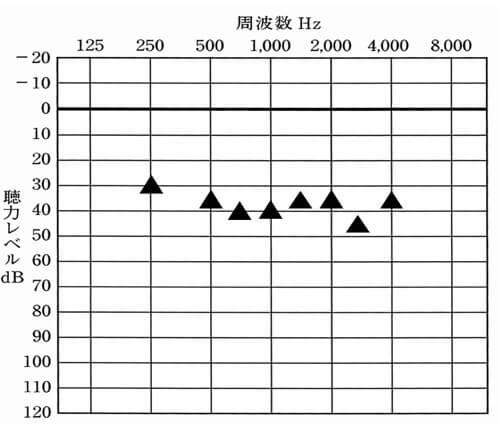 補聴器の状態と比較すると少し低い。実は、なんども調整をしたり、し直したりしたのだが、なぜか、結果がついて来ず……。だった。