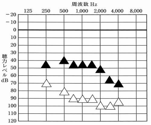 高度難聴以上については、基本的に聴覚医学会の内容で計測。低い音(250Hz〜500hz)は上がりやすく、750Hz、1000Hz、1500Hzも頑張ればできるケースがあるが、2000Hz辺りから、かなりきつくなり、半分は、目指せないことが多い。