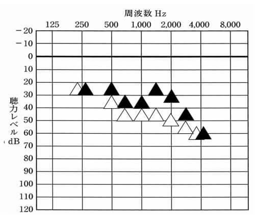△:補聴器なし、▲:補聴器あり。はじめに合わせてみた補聴器の聞こえ。数値としては、そう悪くなく、一部、少し数値が低いところがあるものの、ある程度は、補聴器で改善できている。