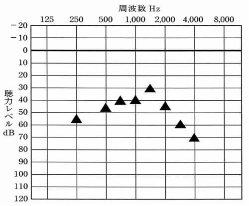▲は、補聴器をつけた時の聞こえの数値。この数値が上に行くと上に行くほど、聞こえがよくなっている。