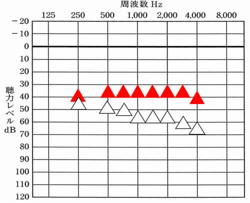 赤い▲が補聴器で目指す改善目標値だとすると、形状により、その改善目標値、言い換えれば、聞こえの上限が変化するのかと言われると、そんなことはない。どれも、上限および、改善目標値は、目指せるようにし、かつ、その上限も変わらない。