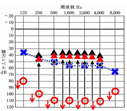 反対側のクロス側の聞こえのイメージは、赤で表現。少し聞こえる耳側よりも下になるが、そもそもの聴力(聞こえ)からすると、大きな改善になる。
